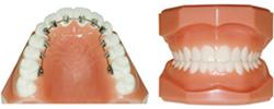 見えない矯正(歯の裏側に付けるタイプ)